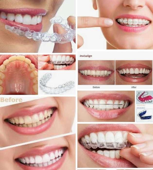 Promoción Retenedores Dentales