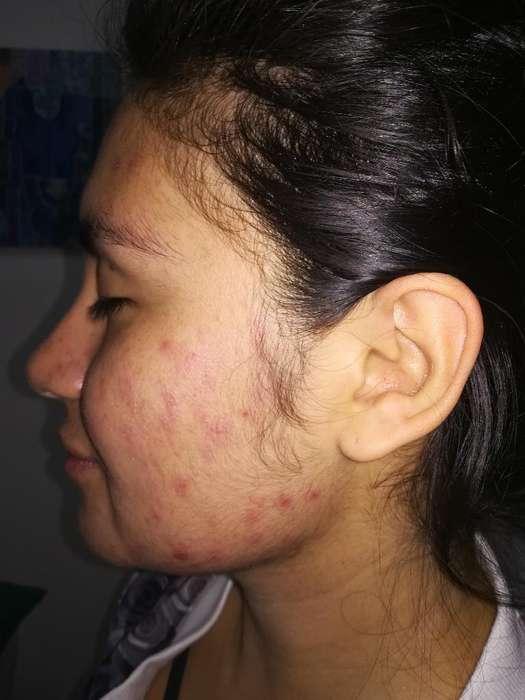 Tratamientos Faciales Anti Acné