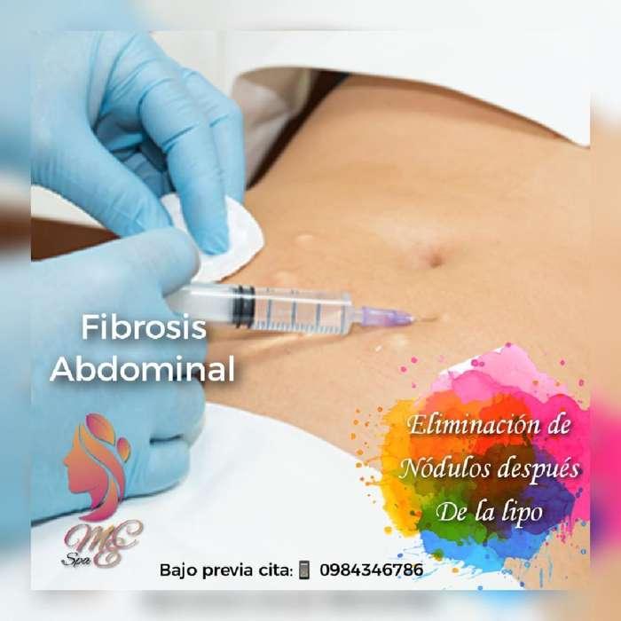 Fibrosis Abdominal