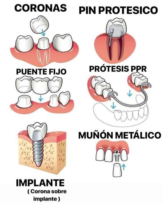 protesis placas puente fijo implante corona dental porcelana zirconio emax metal Promociones
