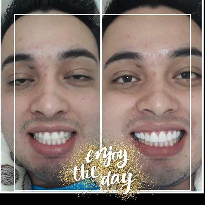 Diseño de Sonrisa 10 Carillas Resina