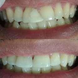 Odontología a Domicilio