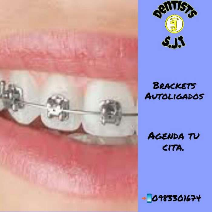 Ortodoncia Autoligados