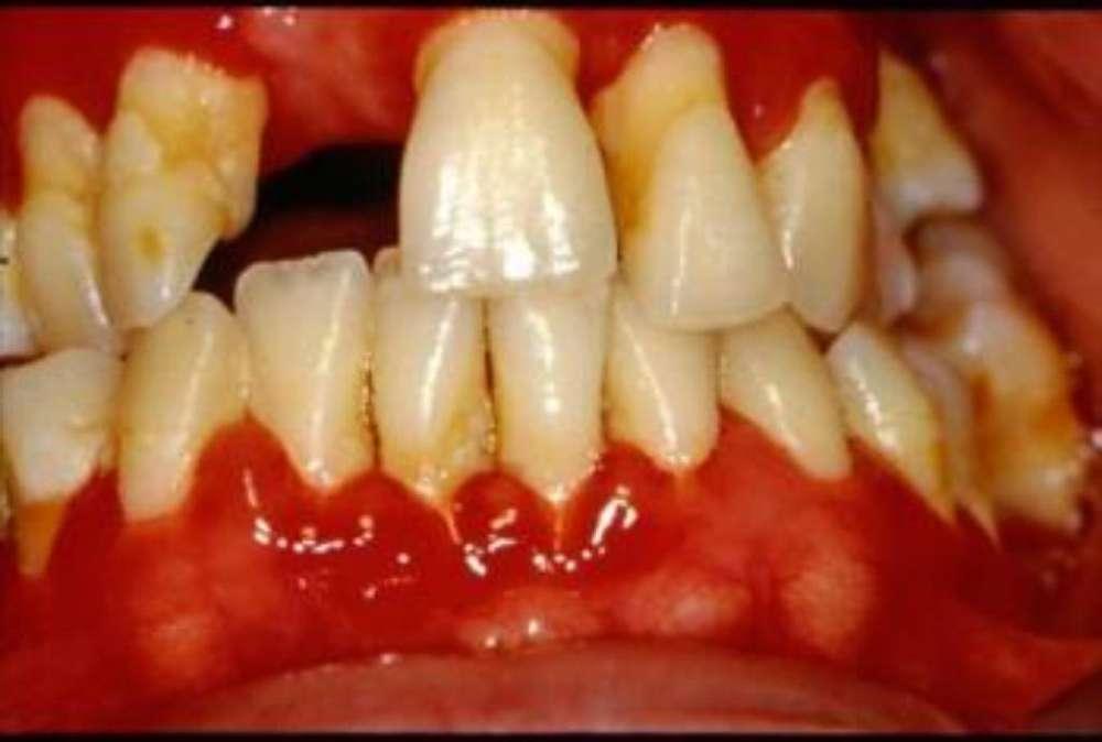 Gratis Tratamientos Dentales