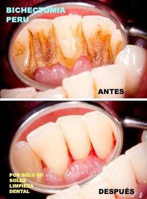 emergencia dental atencion 24 horas