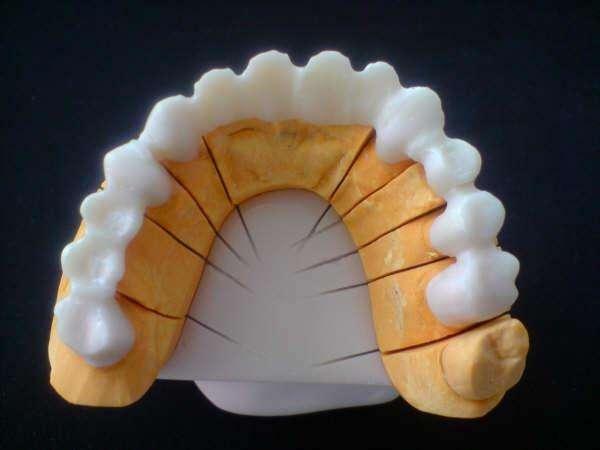 Laboratorios Dentales ,ofrecemos estructuras en zirconio,cofias,full contorno,a muy buenos precios