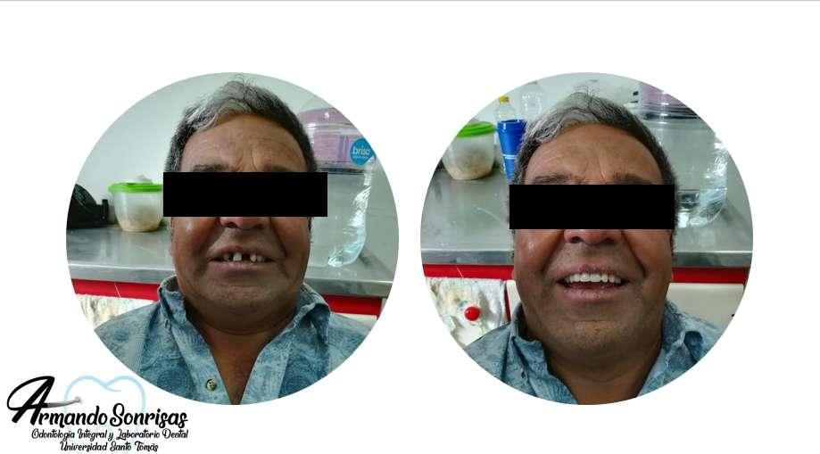 Prótesis Dentales desde 250.000