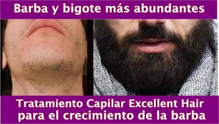 Tratamiento para repoblar la barba y evitar la calvicie