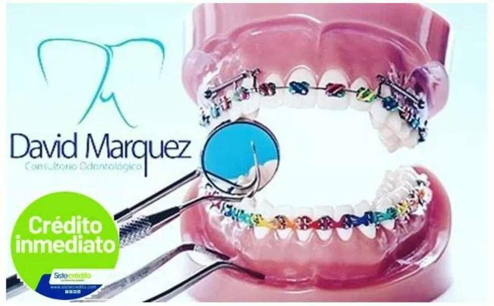 Ortodoncia sin Cuota Inicial 322_4017738