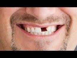 Te hace falta algun diente? vamos hasta tu casa protesis a DOMICILIO !! desde la comodidad de tu hogar