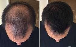 Toppik Cabello Instant Fibra capilar Keratina Alopecia Calvicie Americano