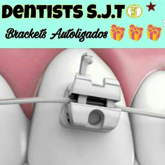 Ortodoncia, Brackets Autoligados