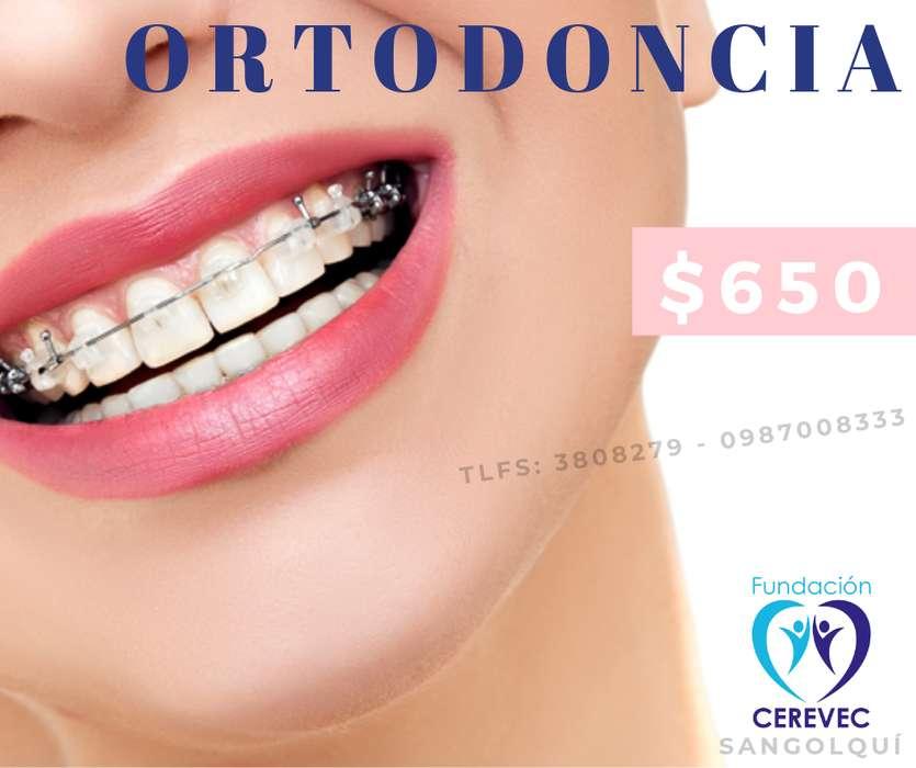 ORTODONCIA - Valle de los Chillos - 0987008333 - FUNDACIÓN