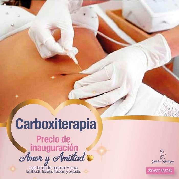 Reducción con Carboxiterapia
