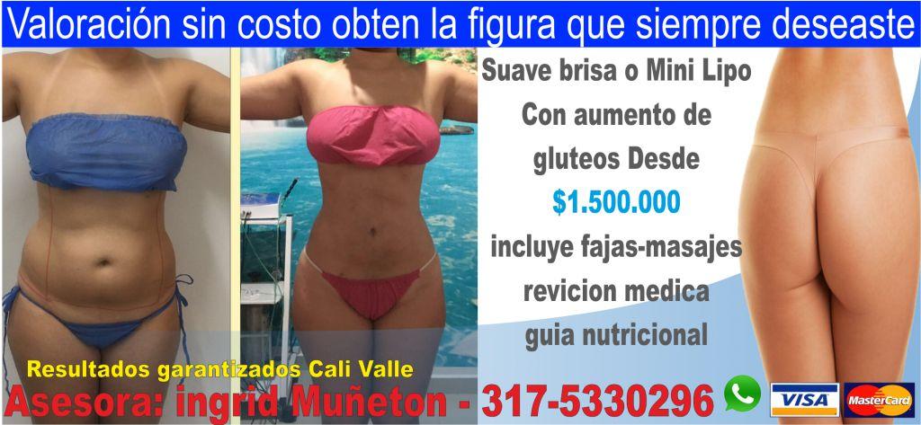 Suave Brisa, MiniLipo, Lipoescultura, liposuccion y masajes postquirurgicos, post operatorios en Cali