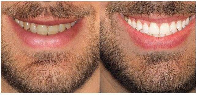 belleza dental
