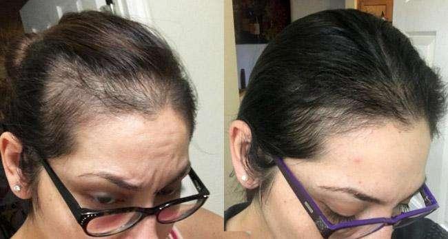 shampoo crece <strong>pelo</strong> DETIENE LA CAIDA DE INMEDIATO TRATAMIENTO REGALO