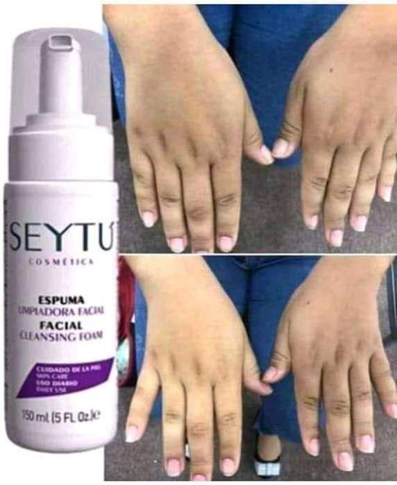 Limpiza de la piel libre de mancaha y acnne