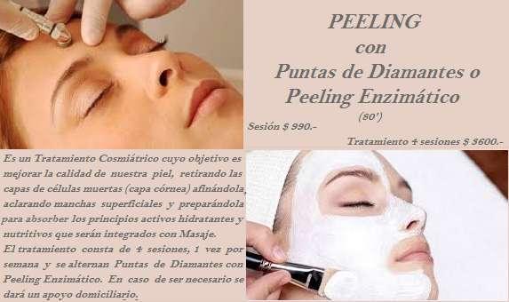 Peeling combinado con Puntas de Diamantes y Peeling Enzimático Promo hasta un 35 OFF