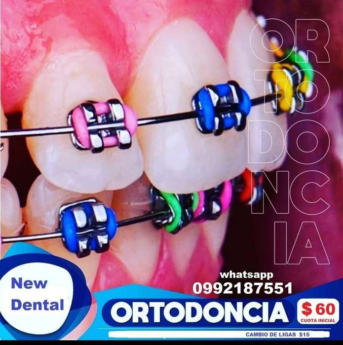 Promoción Ortodoncia con Brackets