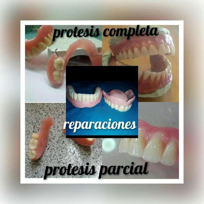 Protesis Acrilico Completa O Parcial