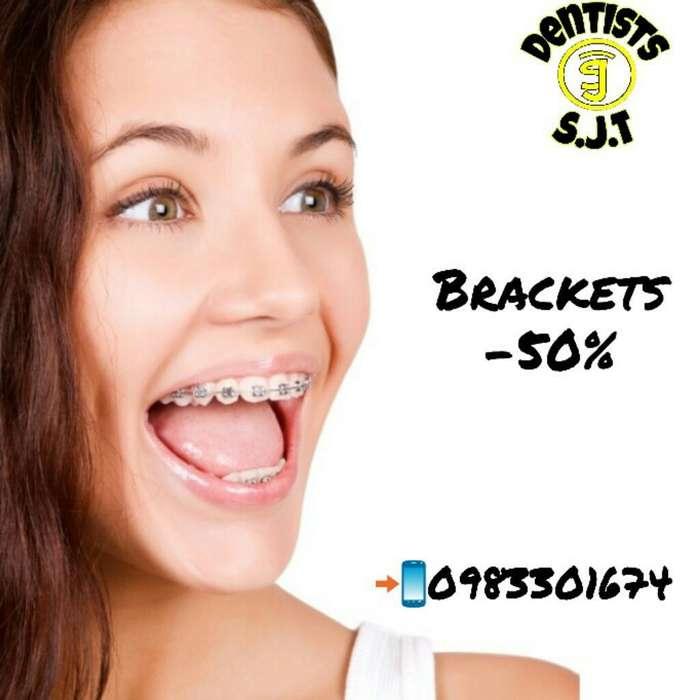 Ortodoncia -50%