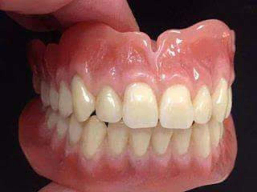 Protesis Dentales,caja Puente,dientes.