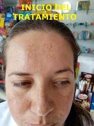 CREMA  FACIAL  ETERNITY  /  GREEN  ( DESMANCHA , QUITA ACNÉ AGRESIVO)