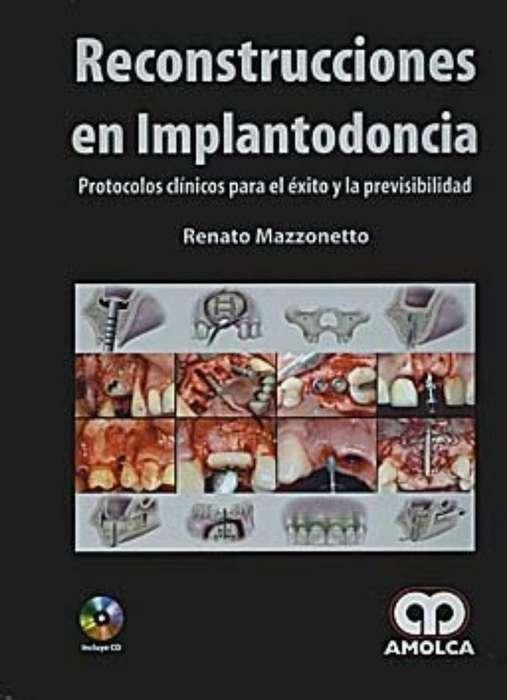 Libro Reconstrucciones en Implantodoncia