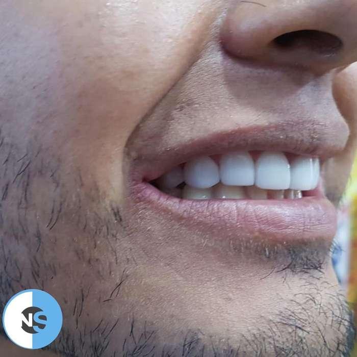 Odontologia Al Precio Justo