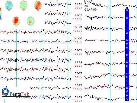 Electroencefalogrma con Informe en 24hs Mapeo cerebral a domicilio Polisomnografia a domicilio Psg internacion
