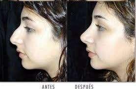 Corrector Nasal Nose Up Promoción Levanta Y Afina La Nariz