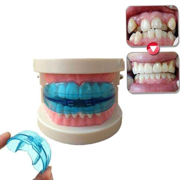 Alineamiento dental sin Brackets?