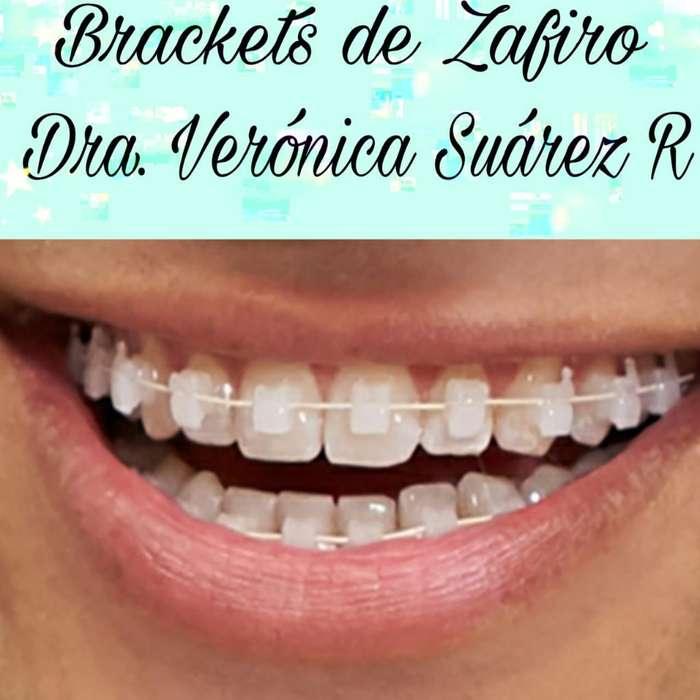 Brackets de Zafiro