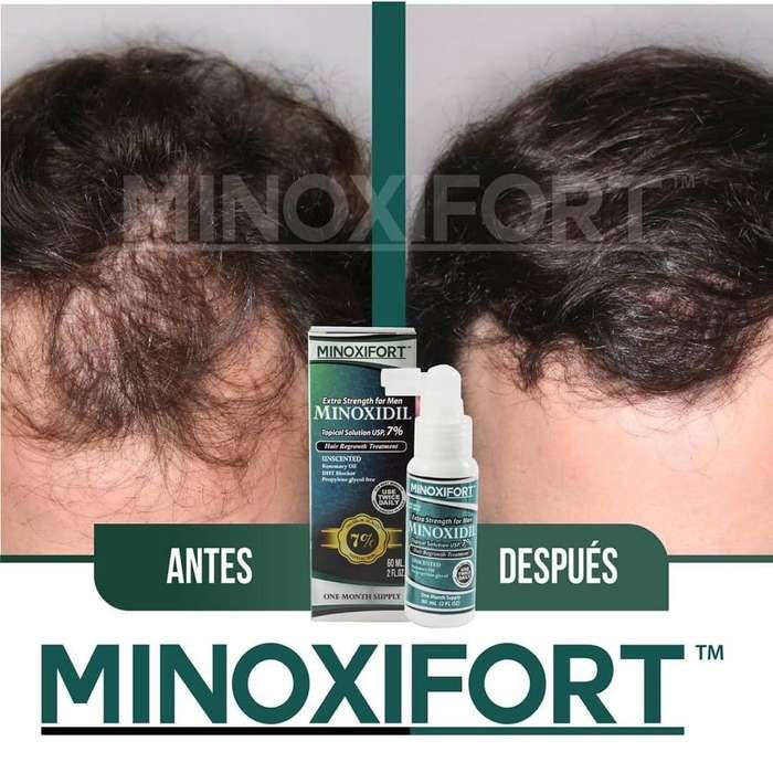 Minoxidil 7% en Oferta