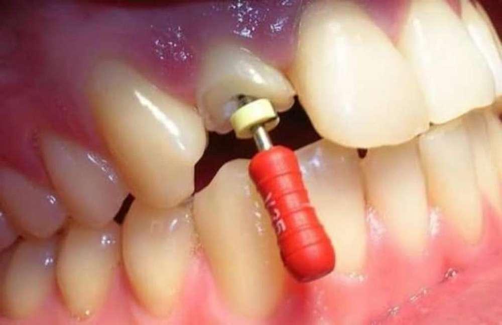 Tratamientos Odontológicos Gratuitos