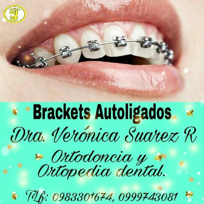 Ortodoncia Dental Autoligados