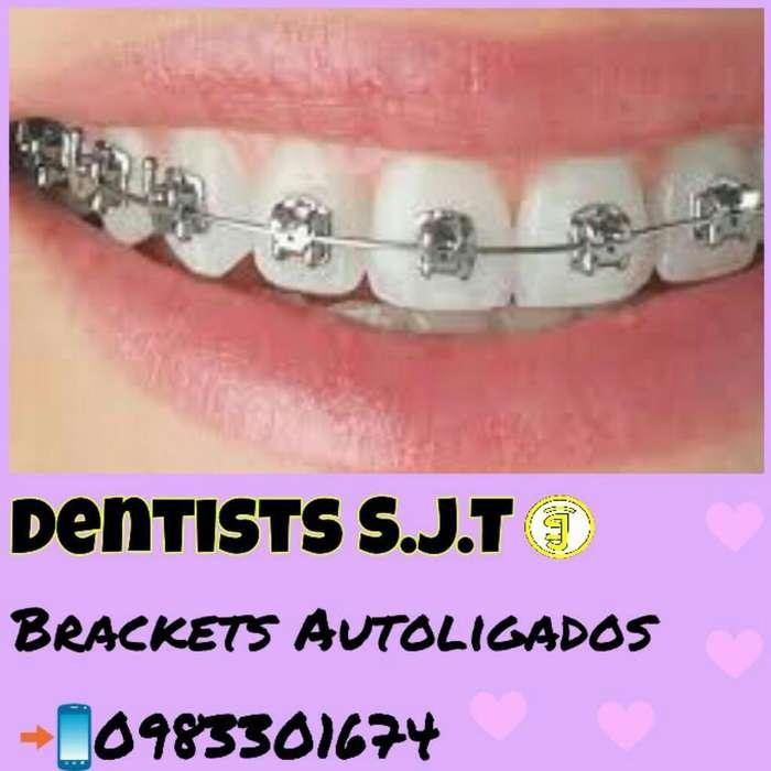 Ortodoncia Autoligados Od