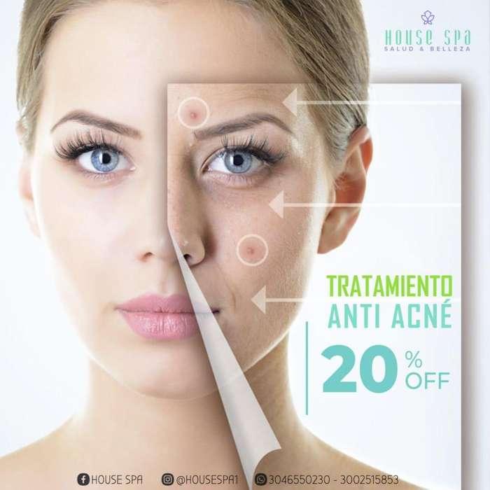 Tratamiento Anti Acné