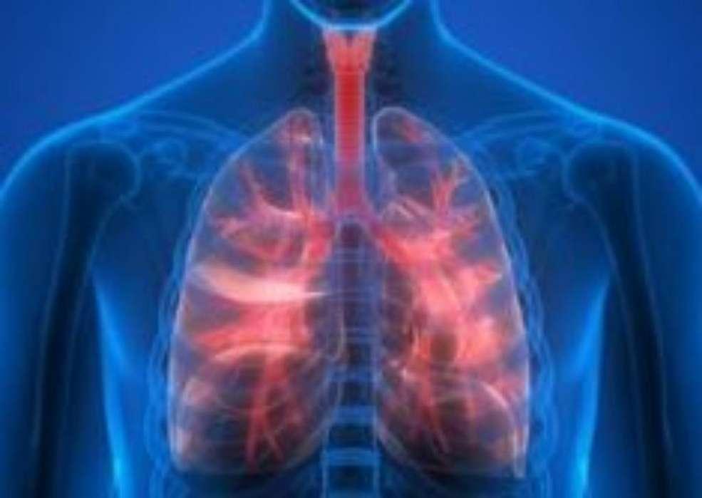 terapia respiratoria domiciliaria ARMENIA Y QUINDIO,nebulizacion,micronebulizacion