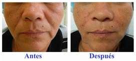 Rejuvenecimiento facial rellenos faciales aumento de labios colageno