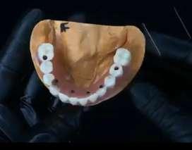 Protesis totales  dental