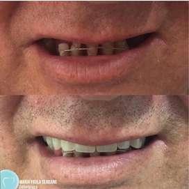 Protesis dentales convencionales o de ultima generacion
