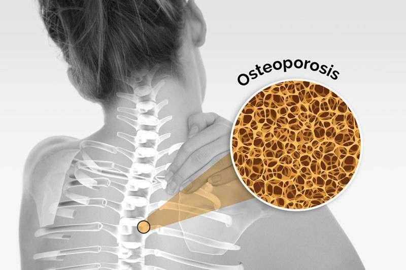 Especialista Osteoporosis Últimos Avances Medico Científico Colombia 0
