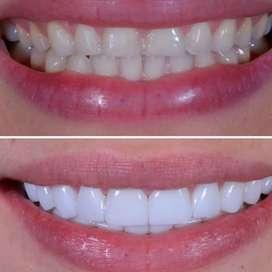 Carillas dentales diseños de sonrisa