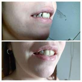 Fundas Estéticas Dentales
