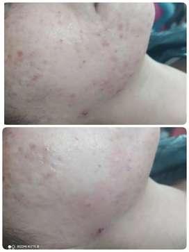 Limpieza facial con láser