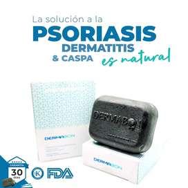 control caspa psoriasis