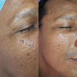 cauterizacion de verrugas