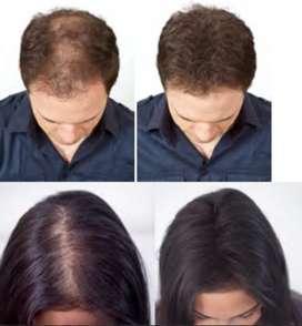 Toppik Fully Hair Frasco Fibra Capilar 27.5 Gramos